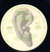 LP - Birth Control - Operation